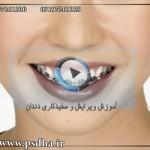 ویرایش و روتوش دندان و سفید کردن آن در فتوشاپ