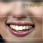 فیلم آموزش سفید کردن دندان در فتوشاپ