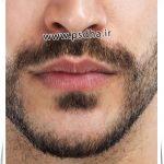 آموزش فتوشاپ اتلیه | ایجاد ریش